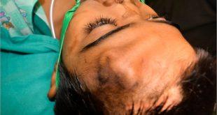 Индийские врачи пересадили пациенту нос, предварительно вырастив его на лбу