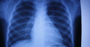 Технология получившая название EVLP (перфузия легких ex-vivo) увеличивает время хранения легких до 12 часов вместо принятых 6-8 часов.